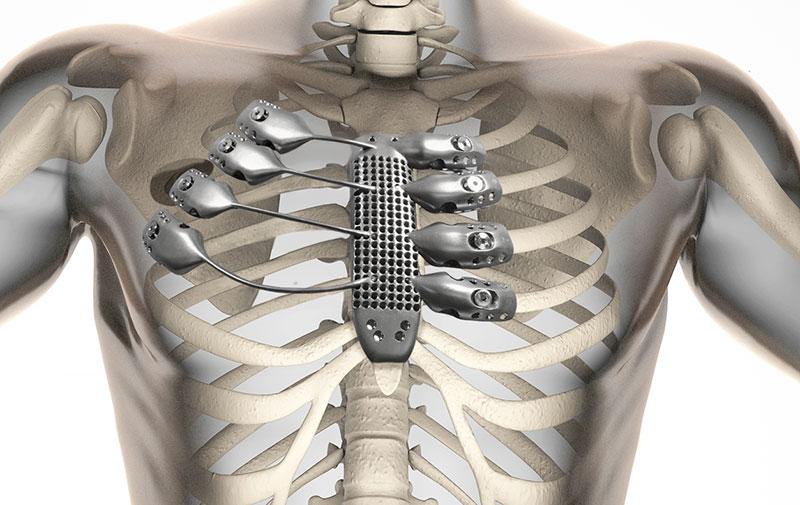 Un equipo médico español, el primero en implantar unas costillas y ...