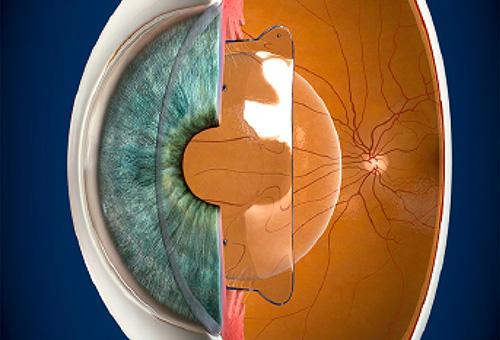 El ojo con una lente ICL implantada en la cámara posterior
