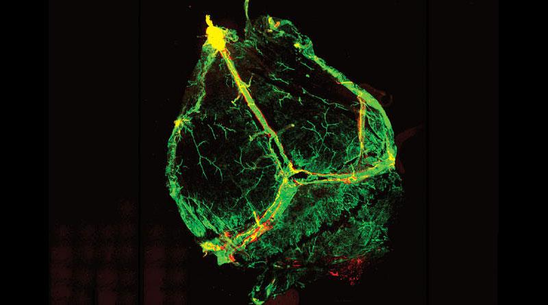 Vasos linfáticos del cerebro