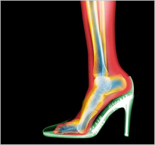Pierna y zapato por Nick Veasey