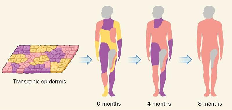 Fases de aplicación de la piel transgénica - Nature News & Views