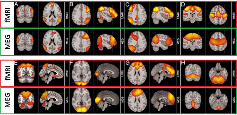 fMRI y MEG