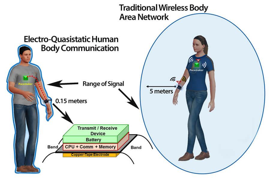 Tecnología de seguridad para crear una «internet del cuerpo» que sea imposible de «crackear» / Universidad de Purdue
