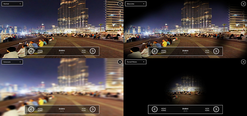 360-view: See the world through these eye conditions | Lenstore